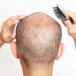 Hair Growth / Alopecia
